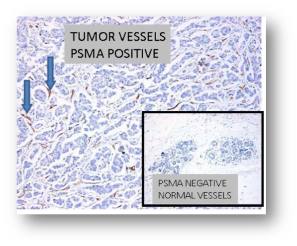 PSMA in Breast 1