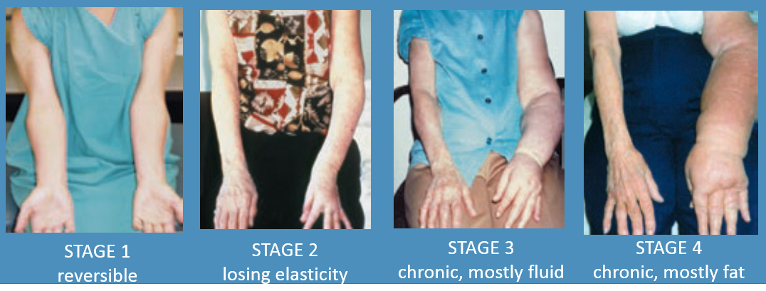 Lymphedema-stages
