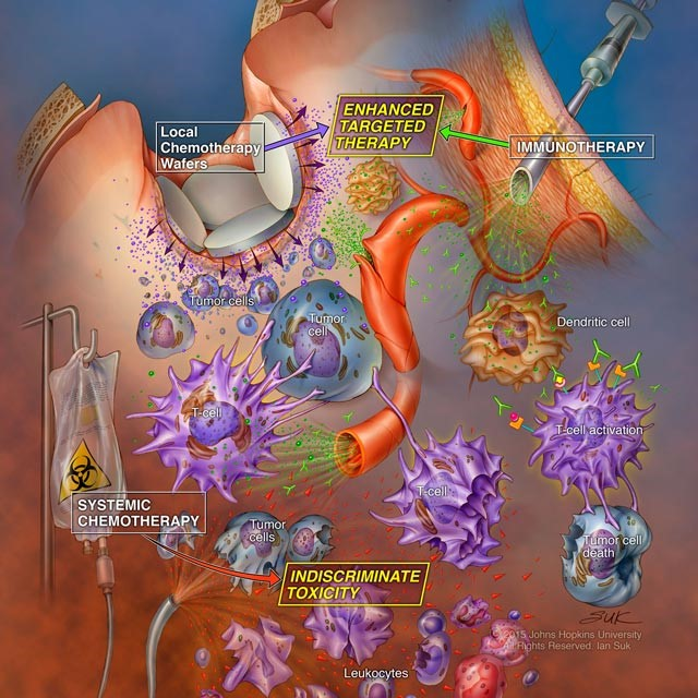 MIGHT SYSTEMIC THERAPY IMPAIR THE SUCCESS OF IMMUNOTHERAPY